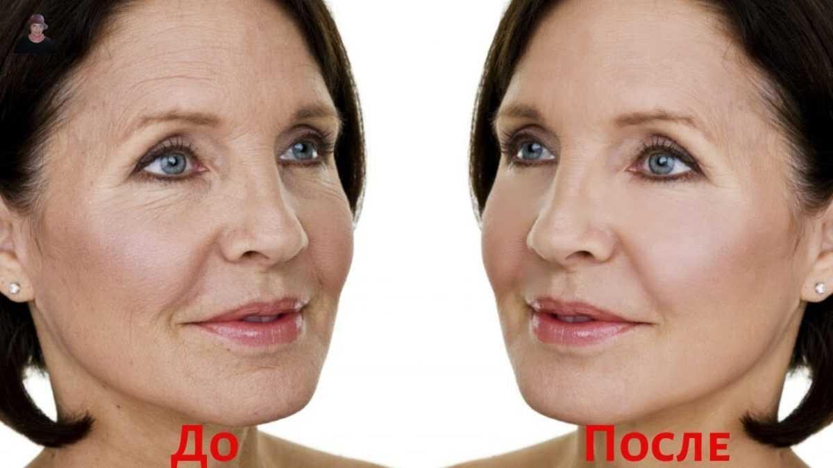 Какие процедуры для лица после 50 лет самые эффективные до и после